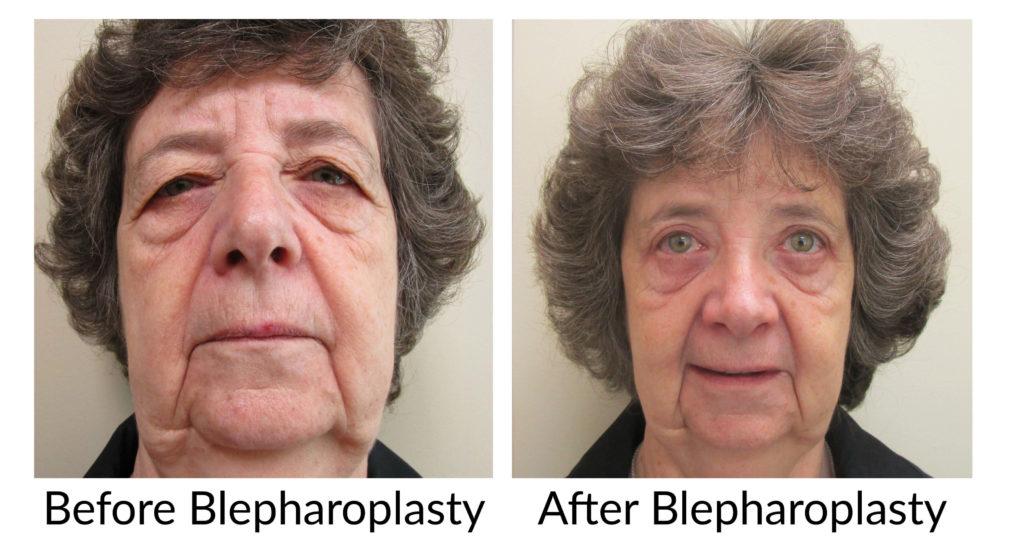 Blepharoplasty After